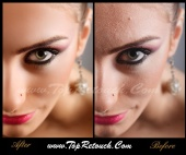 TopRetouch - Medium retouch